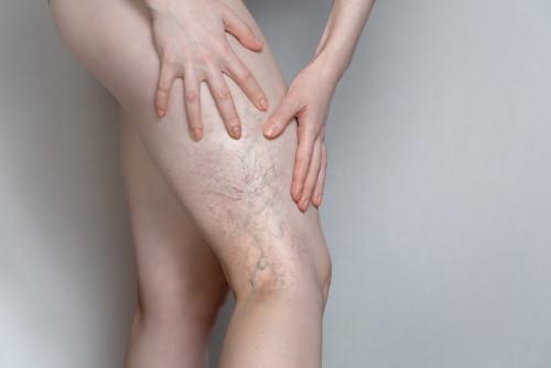 cum să tratezi o articulație inflamată a picioarelor