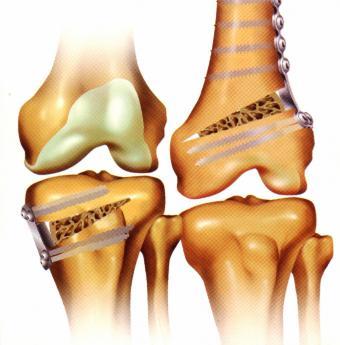dureri de mers în articulații și mușchi