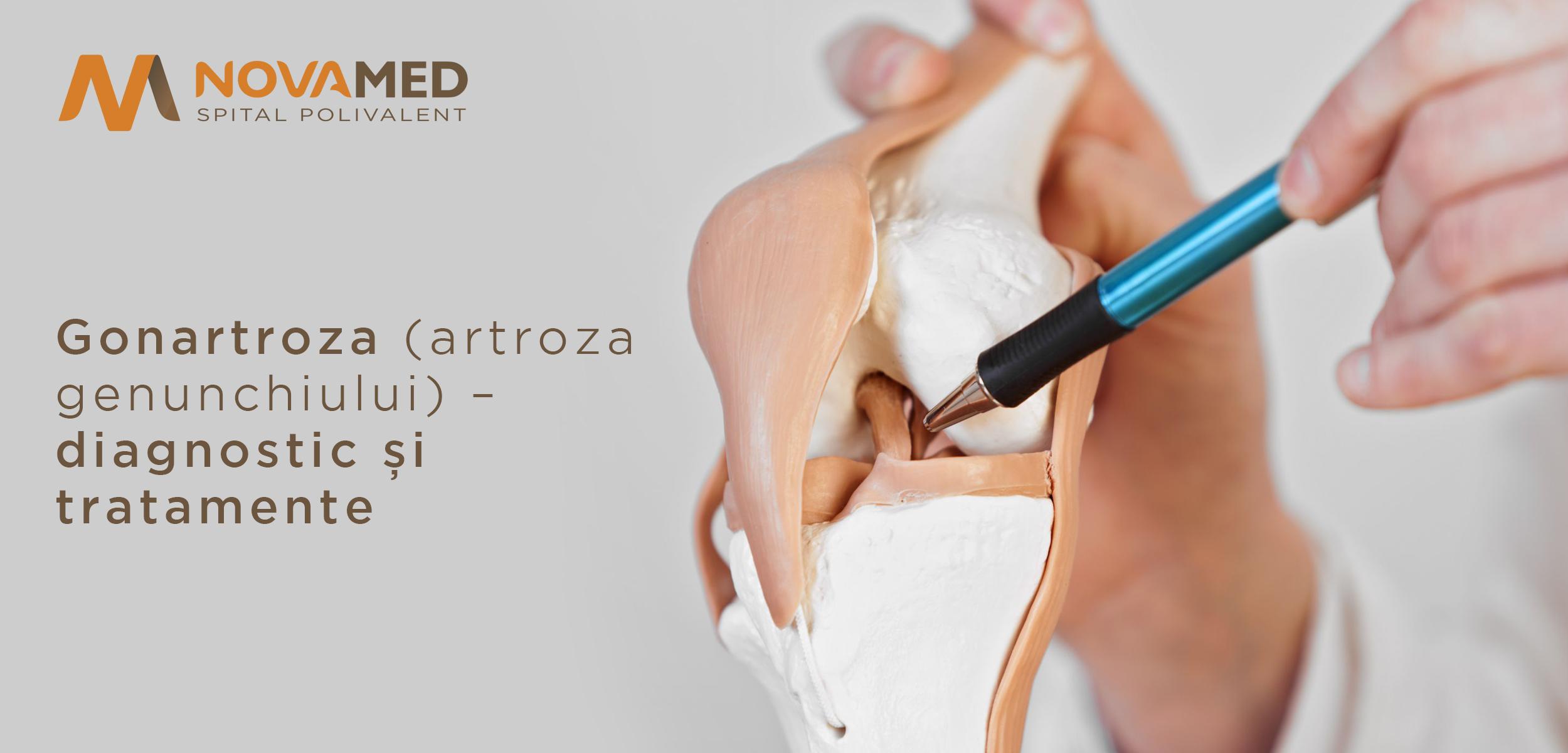 licorice în tratamentul articular artroza 3 grade de tratament al gleznei