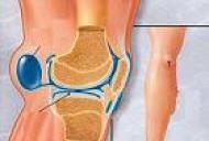 chistul durerii articulare dureri de tragere la șold