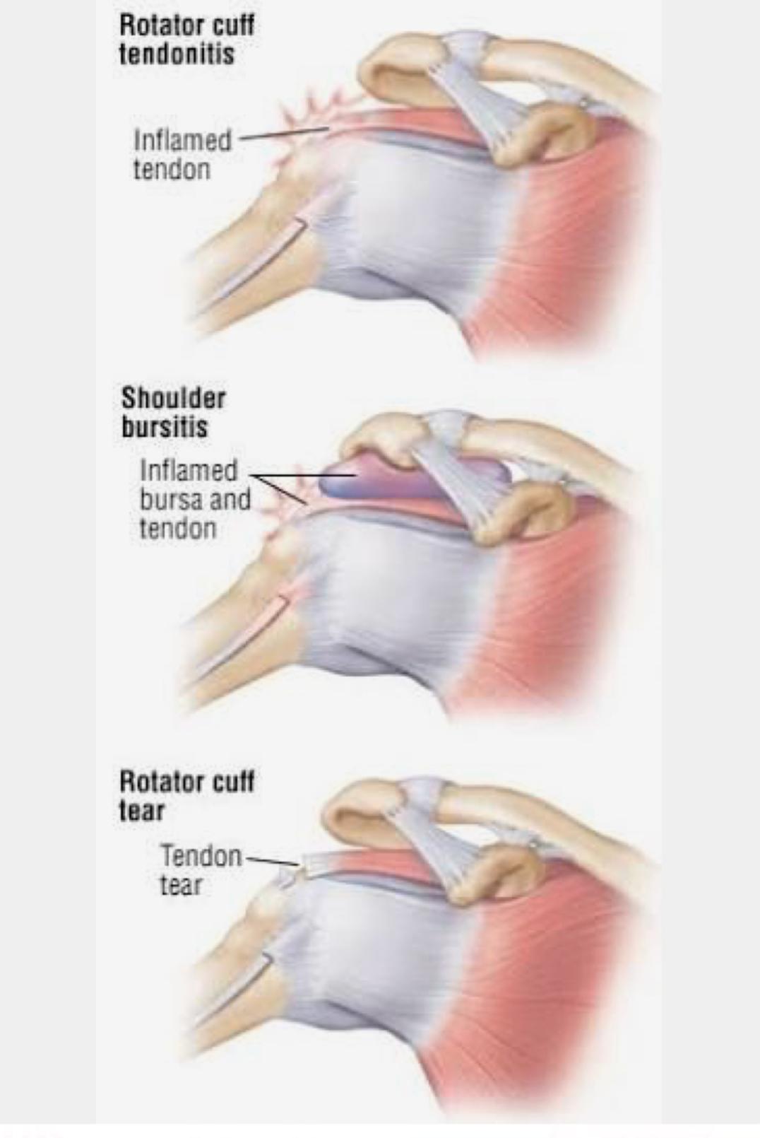 cel mai bun medicament pentru articulații îngroșarea membranei sinoviale a tratamentului articulației genunchiului