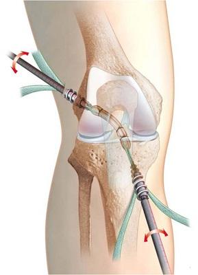 consecințe după deteriorarea ligamentelor genunchiului