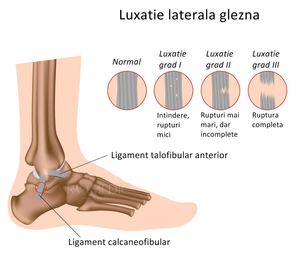 cu luxație în tratamentul articular dureri de articulații și ligamente