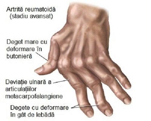 Guta la articulatiile degetelor de la mana