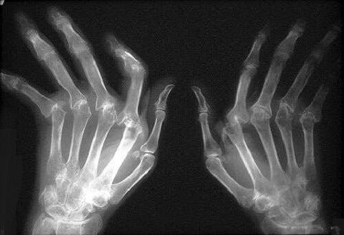 cum să tratezi artrita eficient inflamația ligamentelor și articulațiilor
