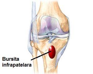 cum să tratezi bursita cronică a genunchiului medicament creak articular