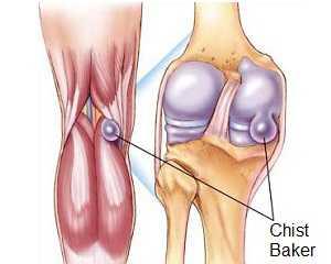cum să tratezi bursita cronică a genunchiului cum să tratezi artrita pe degetele artritei