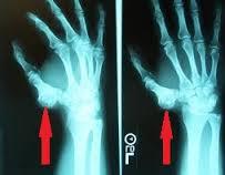 cum să tratezi condromul genunchiului