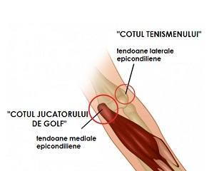 cum să tratezi inflamația tendonului șoldului