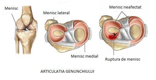 cum să tratezi meniscul genunchiului