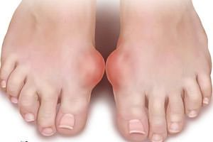 inflamația articulațiilor mâinilor decât a trata cum să tratezi artroza cu furnici