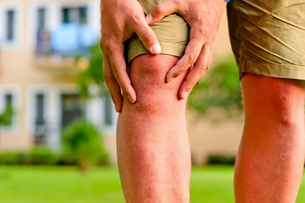 911 cremă pentru articulații artrita tratament artroza osteoporoza