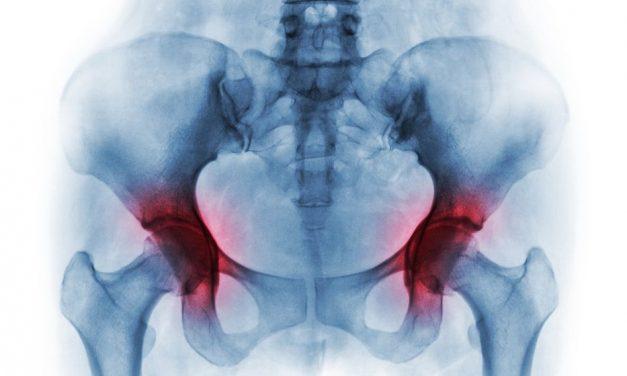 Dureri la nivelul articulațiilor gâtului femural. Artroza – ce este, tratament si simptome