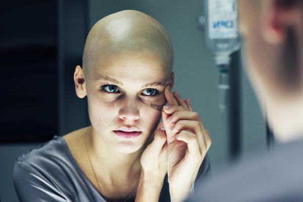 Sarcomul Kaposi: factori de risc, cauze, simptome, tratament