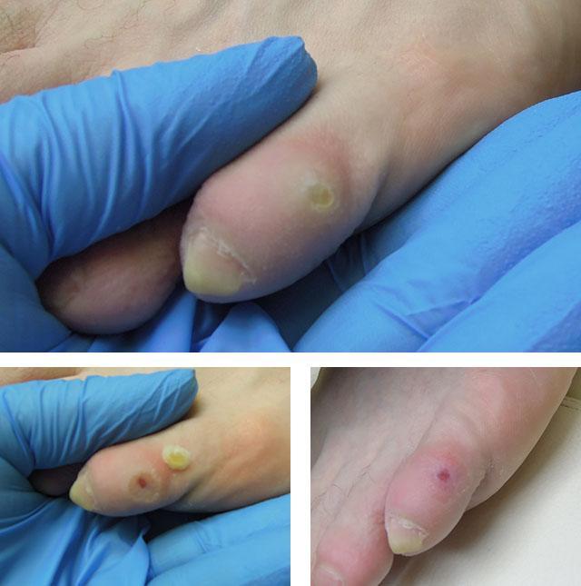 porumb pe articulația inflamației degetelor de la picioare ce provoacă boli articulare