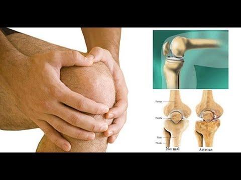movalis cu artroza articulației gleznei