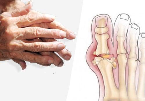 unde articulația gleznei doare
