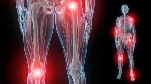 articulații umflate pe tratamentul brațului preț de condroitină glucosamină teraflex