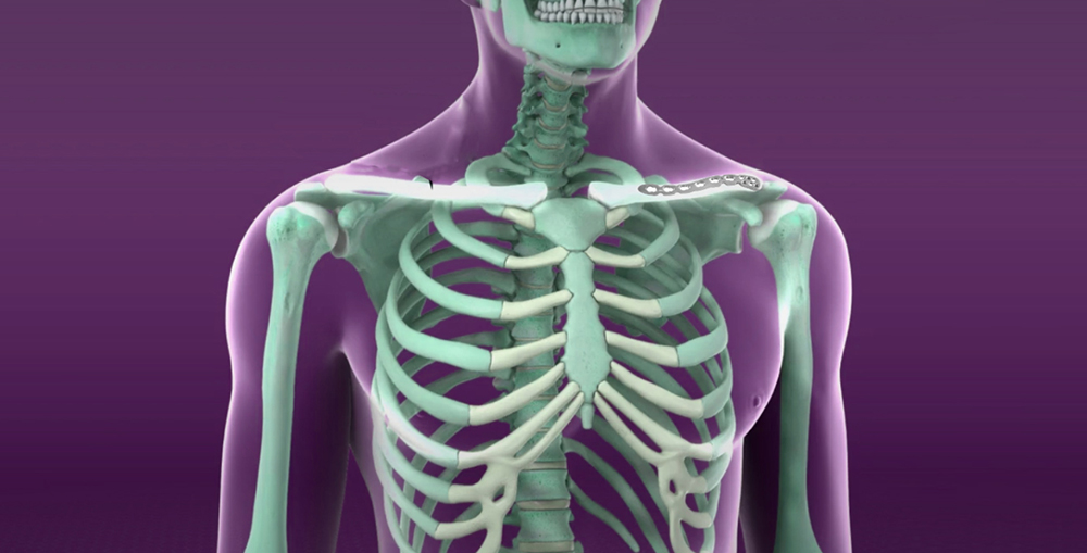 cauze ale durerii în articulația umărului și antebraț unguente contra inflamației genunchiului