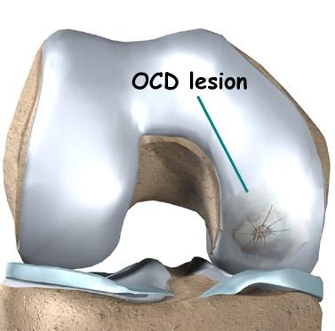 Tratament osteocondrita
