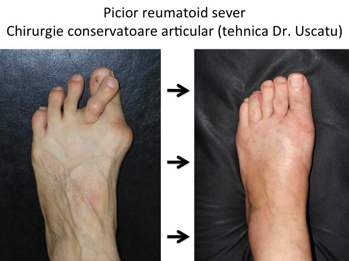 articulația pe picior în genunchi doare comprimate pentru durere în articulațiile degetelor