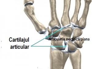 Deteriorarea capsulei articulației degetului de la picior