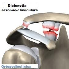 deteriorarea ligamentelor articulației acromioclaviculare drepte