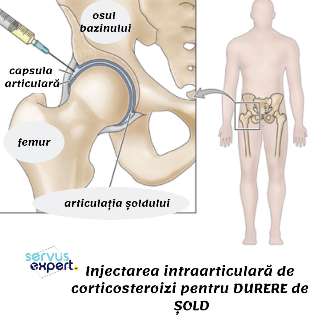 tratamentul osteosclerozei articulației șoldului retete pentru osteochondroza articulatiei genunchiului