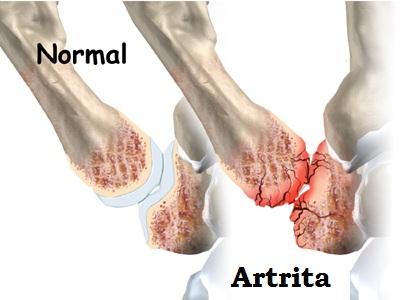 durerea articulației șoldului ciupit nervul în