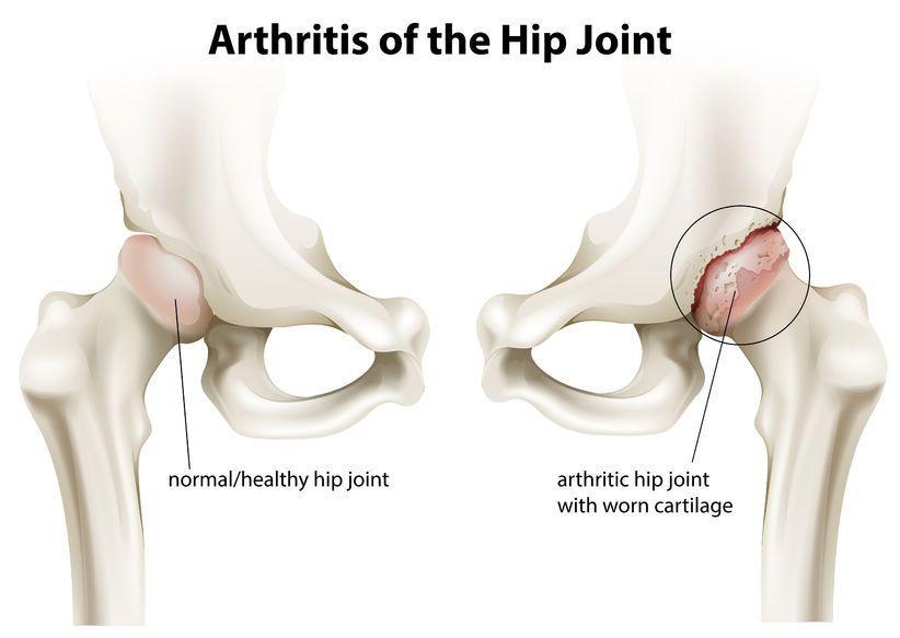 durere în articulația șoldului după protetice