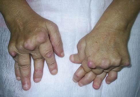 Poliartrita reumatoida | avagardens.ro