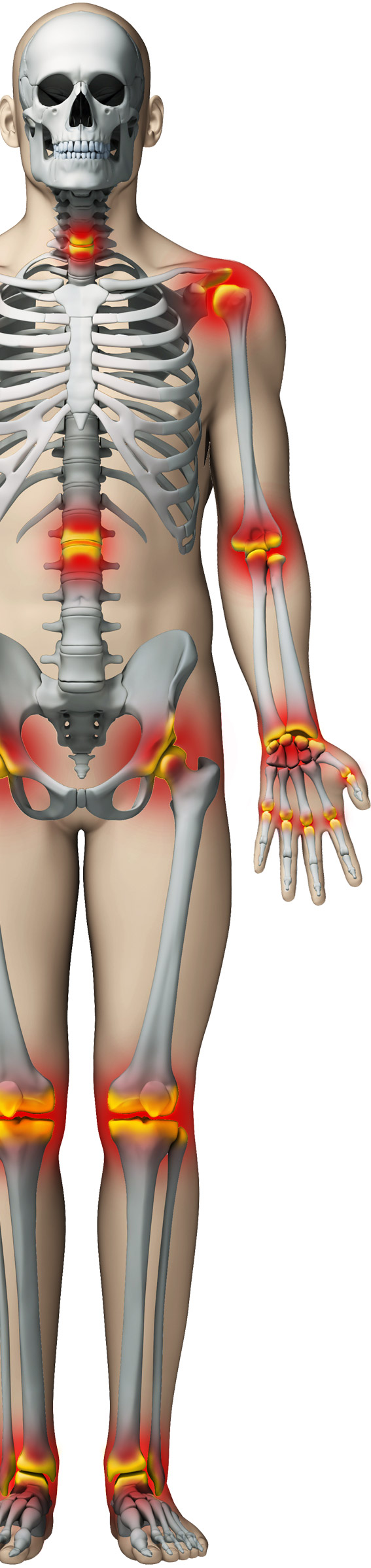 cum să tratezi artroza durerii de genunchi