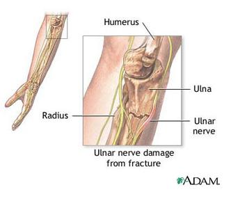 cum să tratezi artrita reumatoidă cu medicamente