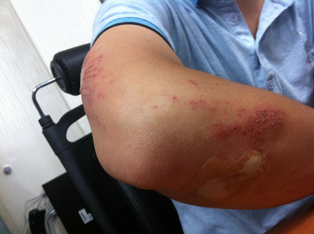 Articulatia cotului – normal vs. patologic – Dr. Alin Popescu Dureri de cot după accidentare
