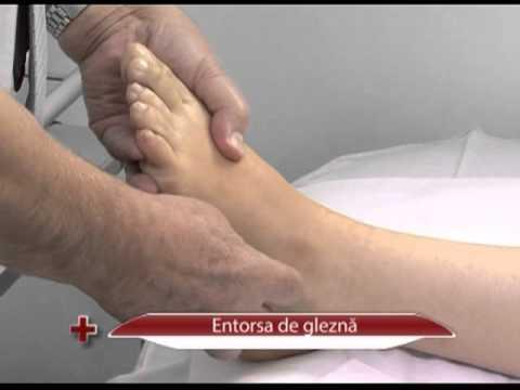 artroza posttraumatică a articulațiilor cotului