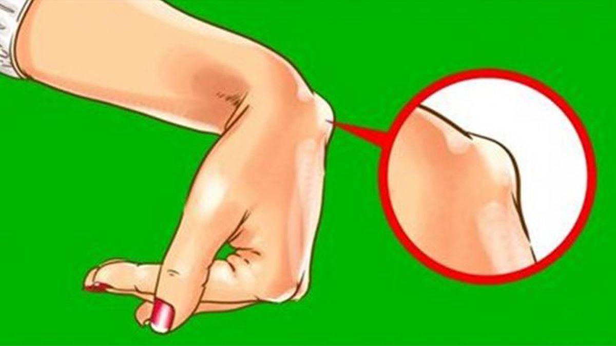 dureri la încheietura mâinii fără niciun motiv aparent dureri de cusături în articulația umărului stâng