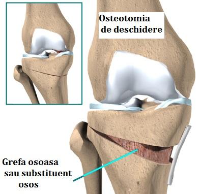 înlocuiți articulația genunchiului