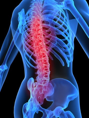 dureri severe ale articulației șoldului dureri sinovite