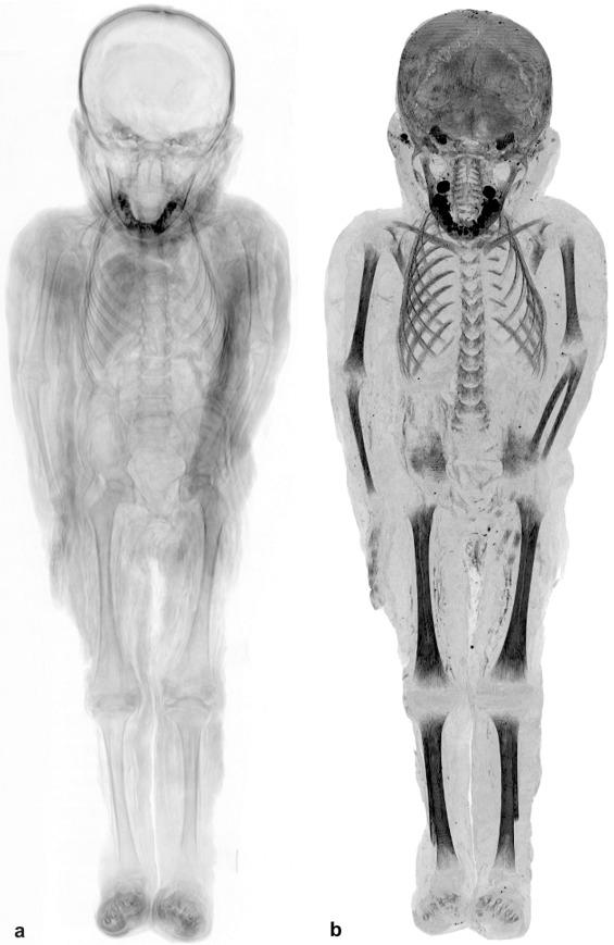 tratament articular cu mumie
