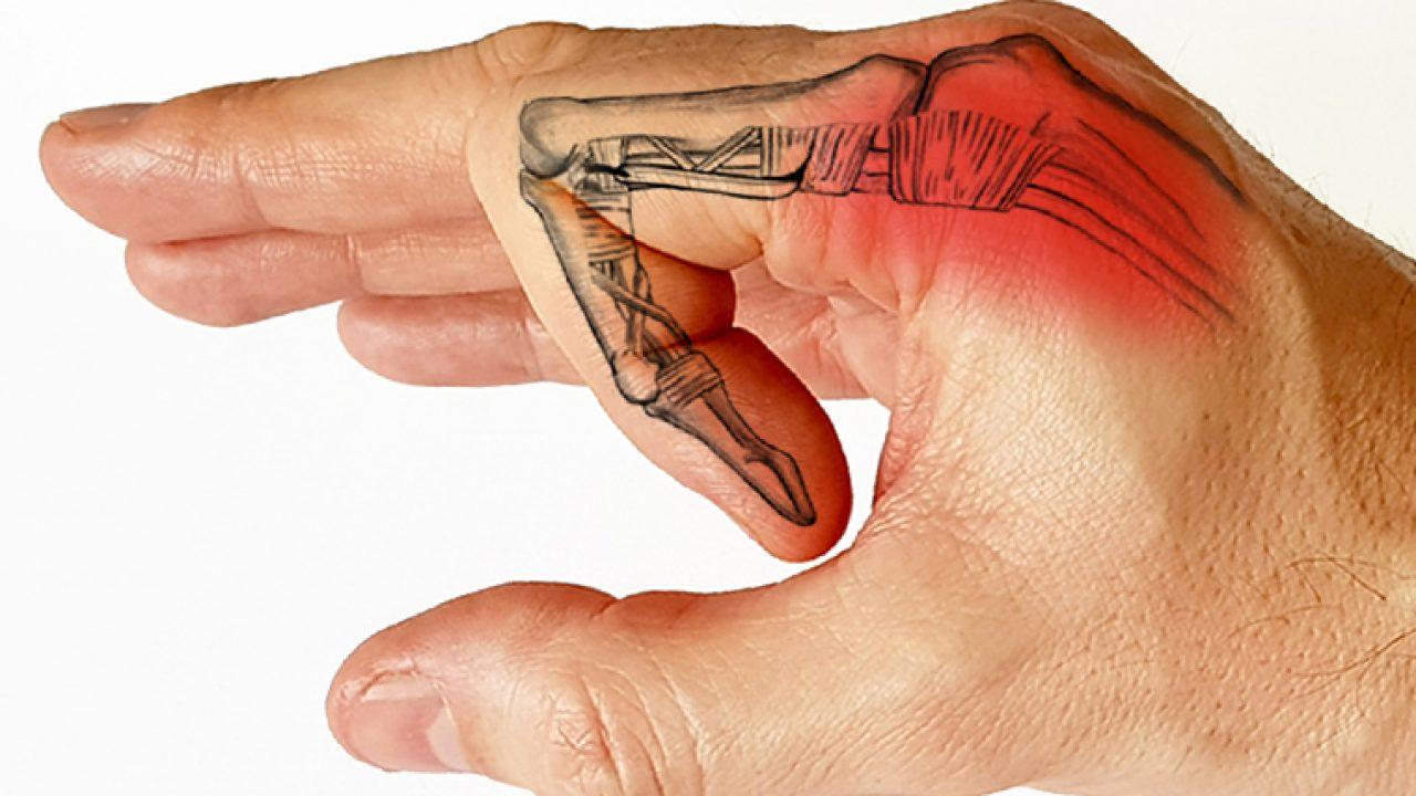 Cum să îndrepți degetele cu artrita, Doare articulația cotului sub efort