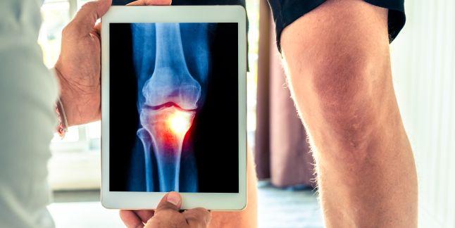 entorsa simptomelor tratamentului articulației genunchiului artroza genunchilor simptome și tratament de 1 grad