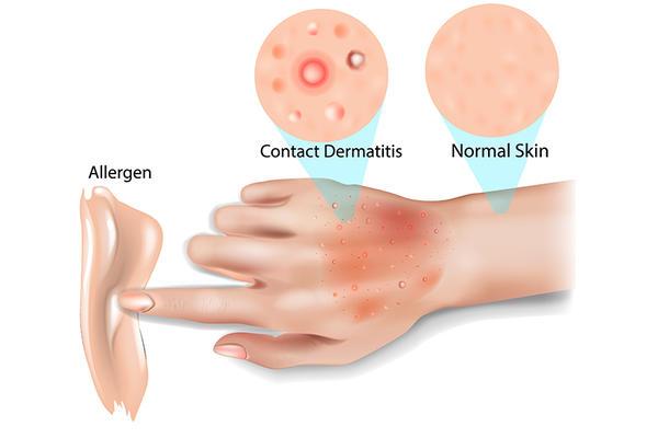 Urticaria - care sunt simptomele, de ce apare si cum o tratezi | avagardens.ro