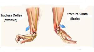 Fractura la mana si patologia osteo articulara a mainii