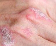 Boli autoimune cu leziuni articulare predominante