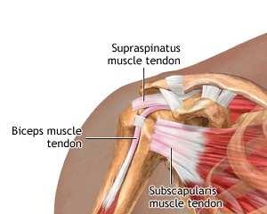Inflamația tendoanelor articulației umărului. Tendinita calcică a umărului