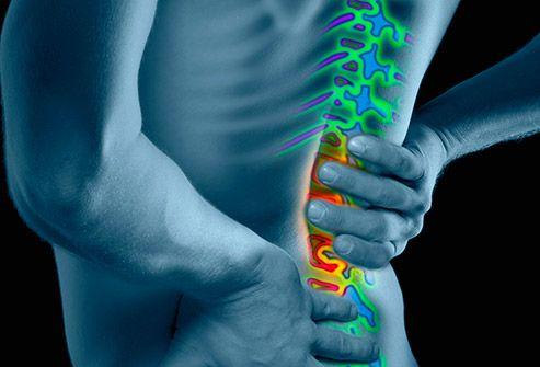 lipsa durerilor articulare de calciu se numește fluid în articulația genunchiului