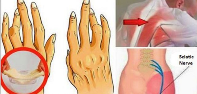 colită și dureri articulare unguent pentru durere în articulațiile Evalar