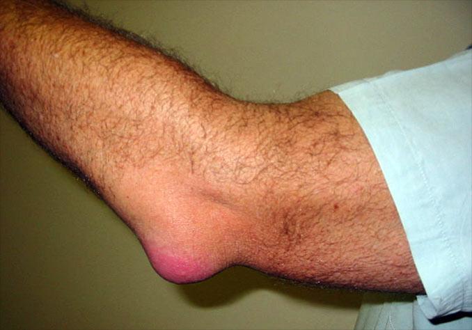 fistula tratamentului articulației cotului inflamația articulației și a ligamentelor