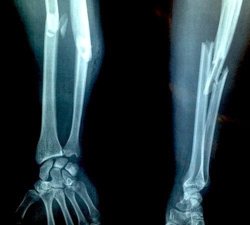 tratamentul epicondilitei de umăr durere articulară a degetului mijlociu al mâinii stângi