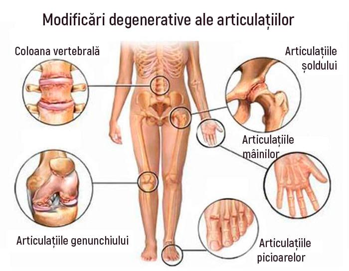 gel din articulațiile picioarelor